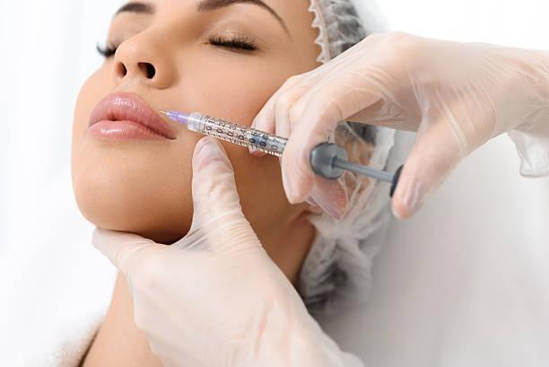 skillful doctor injecting lips with hyaluronic liquid - nadeldesigns stock-fotos und bilder