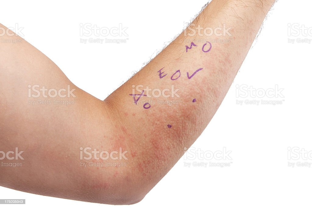 skin allergy - 8 stock photo