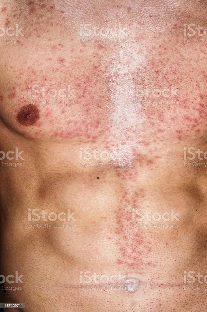 Skin Allergy Infection on Male Body stock photo
