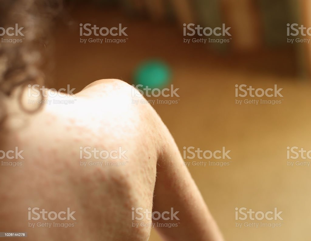 Skin allergy stock photo