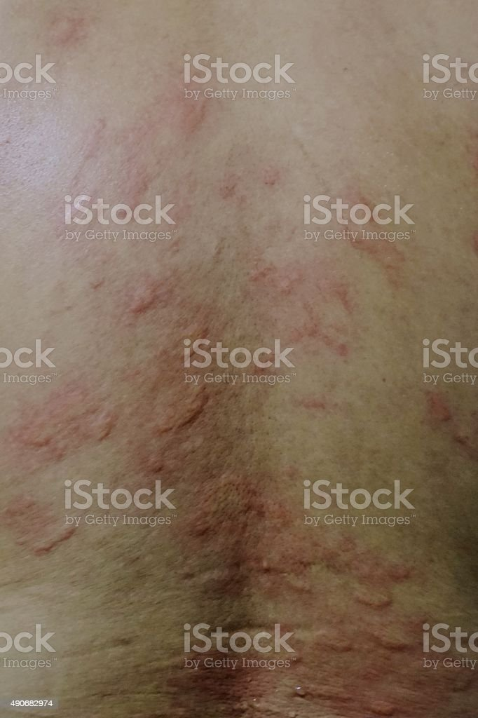 close up skin allergy in the back of male body