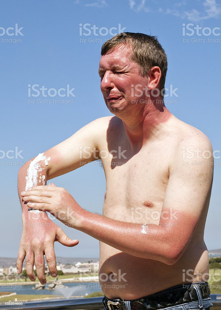 Skin burn stock photo