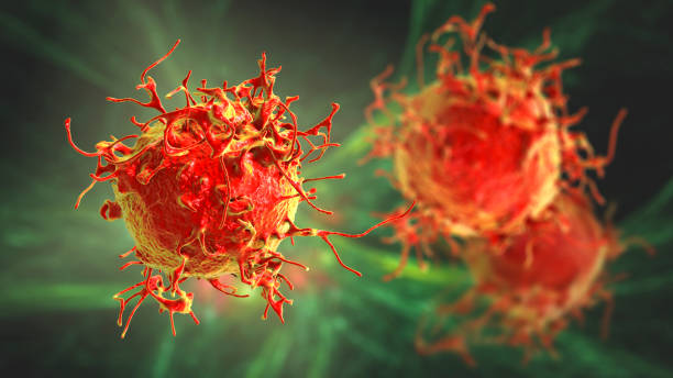 Skin cancer cells stock photo
