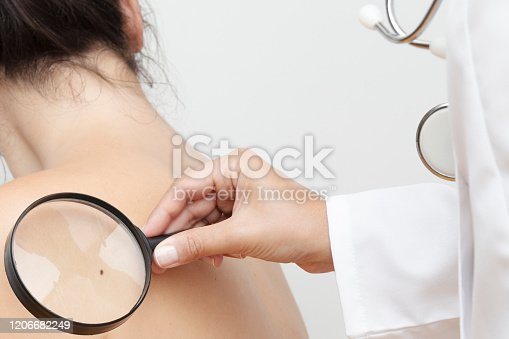Dermatologist examines skin cancer with a magnifier.
