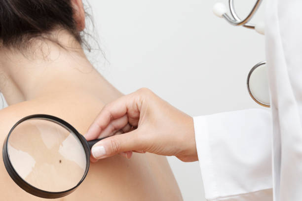 Skin Cancer Dermatologist examines skin cancer with a magnifier. dermatologist stock pictures, royalty-free photos & images