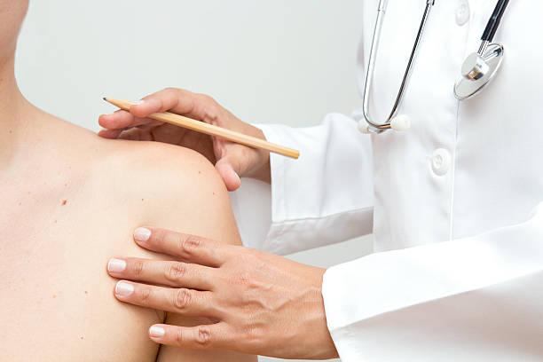 skin cancer - leberfleck hautmerkmal stock-fotos und bilder