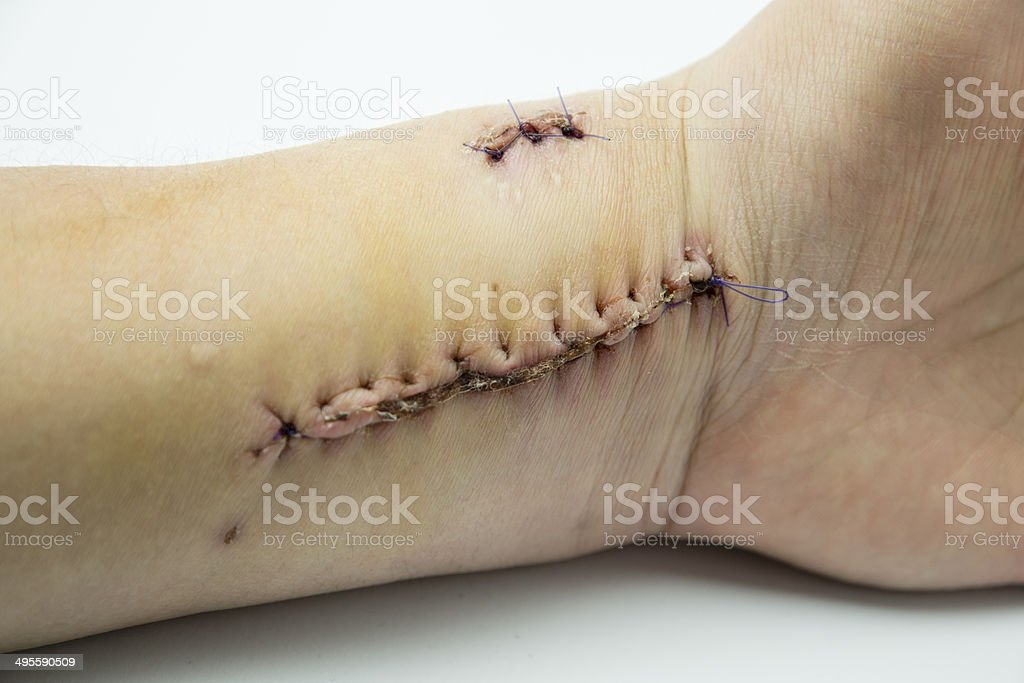 Skin Cancer Removal stock photo