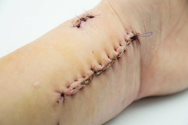 hautkrebs entfernen - sonnenbrand heilen stock-fotos und bilder
