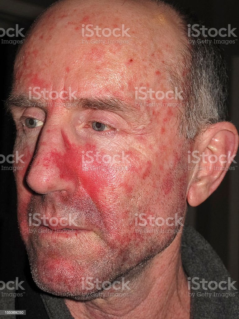 Skin Cancer Treatment stock photo