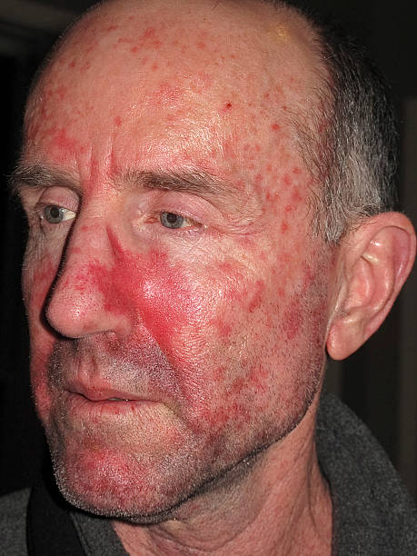 skin cancers conditions and burns Risk factors for skin cancer what causes basal and squamous cell skin cancer certain long-term or severe skin problems scars from bad burns.