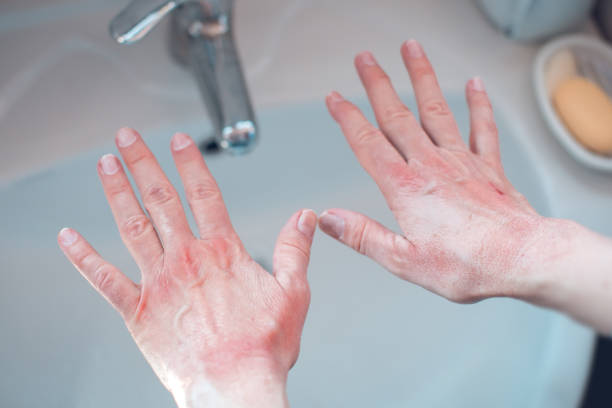 skin damage on hands from washing with soap stock photo