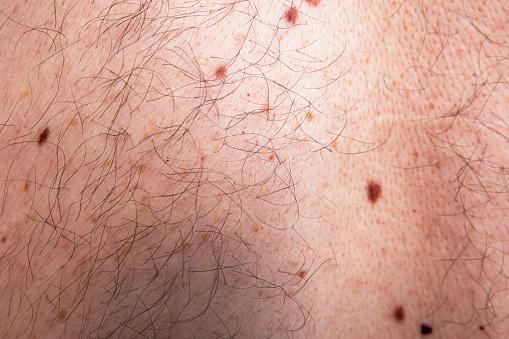Skin Disease On Caucasian Man Bust Stock Photo - Download