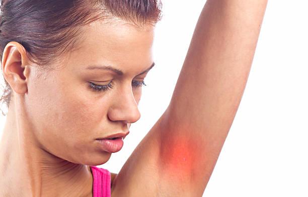 Maladies de la peau - Photo