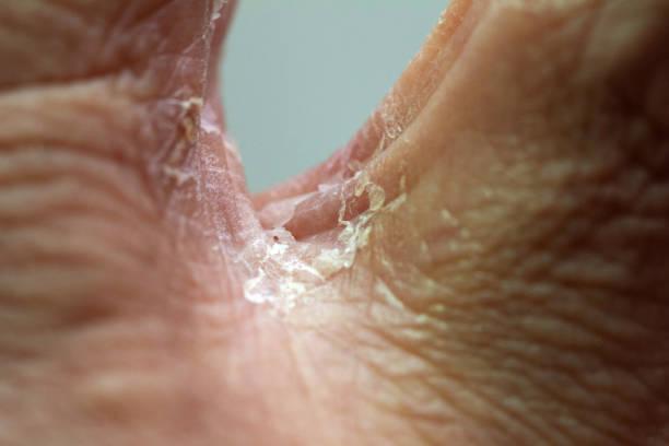 Skin disease stock photo