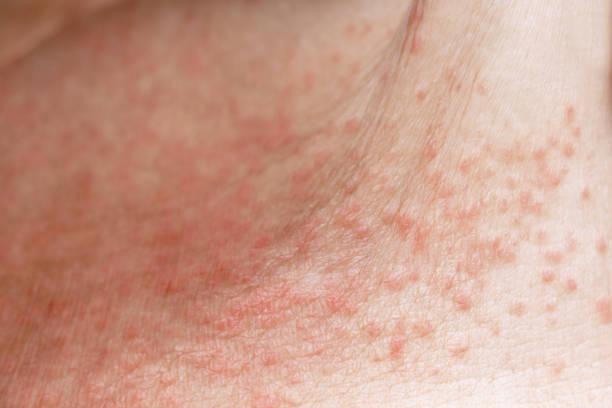 피부 질환은 여성의 배꼽 피부에 발진이나 밀리아리아를 가시게 가열합니다. 더운 날씨와 함께 햇볕이 잘 드는 야외 작업에 대한 건강 관리 피부원인과 땀이 있습니다. 피부과 및 치료 약물 개� 스톡 사진