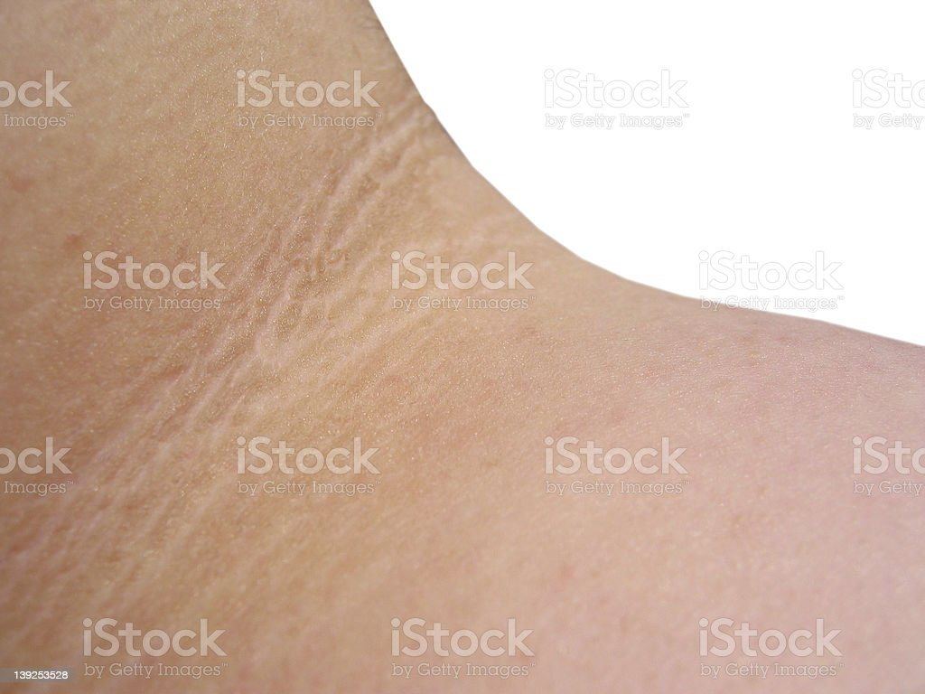skin disorder 1 (REQUEST) stock photo