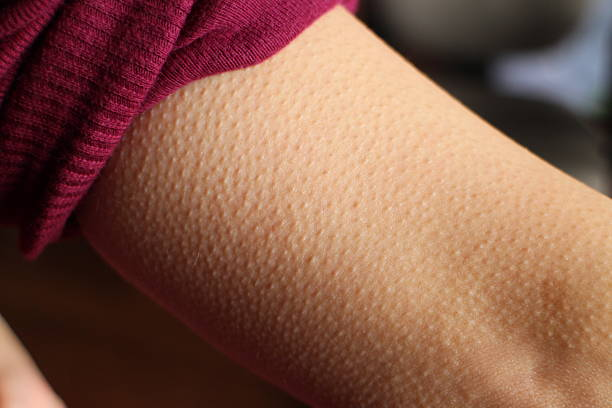 Skin Goosebumps closeup Skin Goosebumps Close-up goosebumps stock pictures, royalty-free photos & images