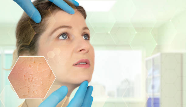 Skin Illness Beauty Spa, Anti Aging, Aging Process, Wrinkled, Women arid stock pictures, royalty-free photos & images