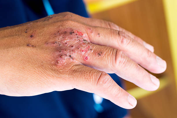 Skin Infection stock photo