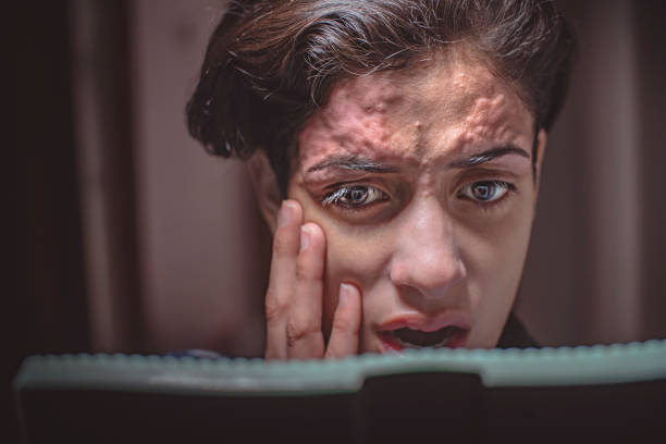 Skin inflammation on forehead due to threading. Close-up, head-shot of Young woman looking at inflammation on her forehead happened due to hair removal by threading on eyebrows and forehead. threading stock pictures, royalty-free photos & images