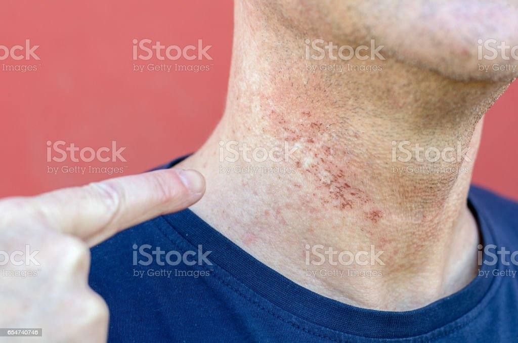 Skin irritation after cosmetic surgery stock photo