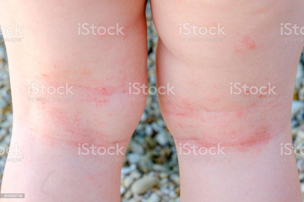 Hautreizungen Neugeborenen Closeup atopischer Dermatitis Beine Kratzer – Foto