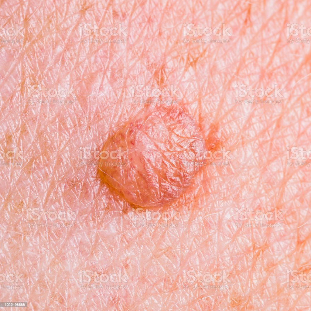 Skin Mole Defect High Magnification Macro Photo for Medical Diagnosis stock photo