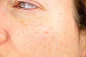 istock skin of woman with blemish and spots 600165480