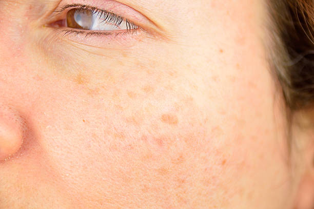 skin of woman with blemish and spots - con lunares fotografías e imágenes de stock