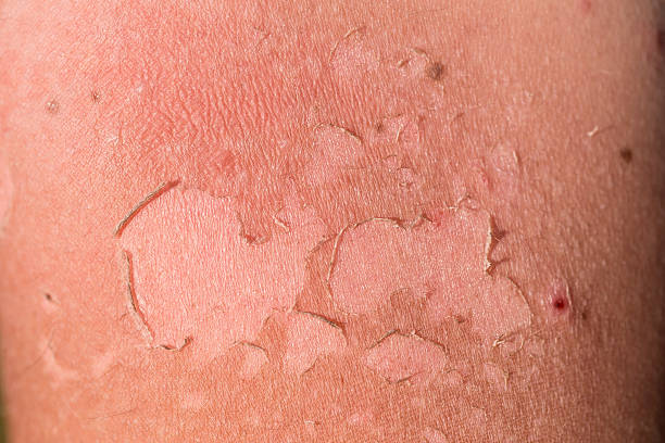 Skin peeling due to a strong sunburn stock photo
