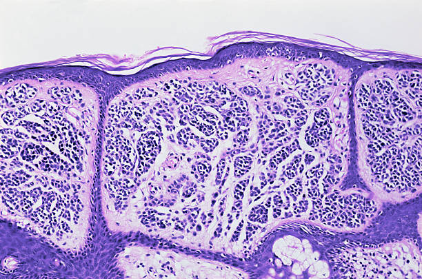 skin - magnification stock photos and pictures