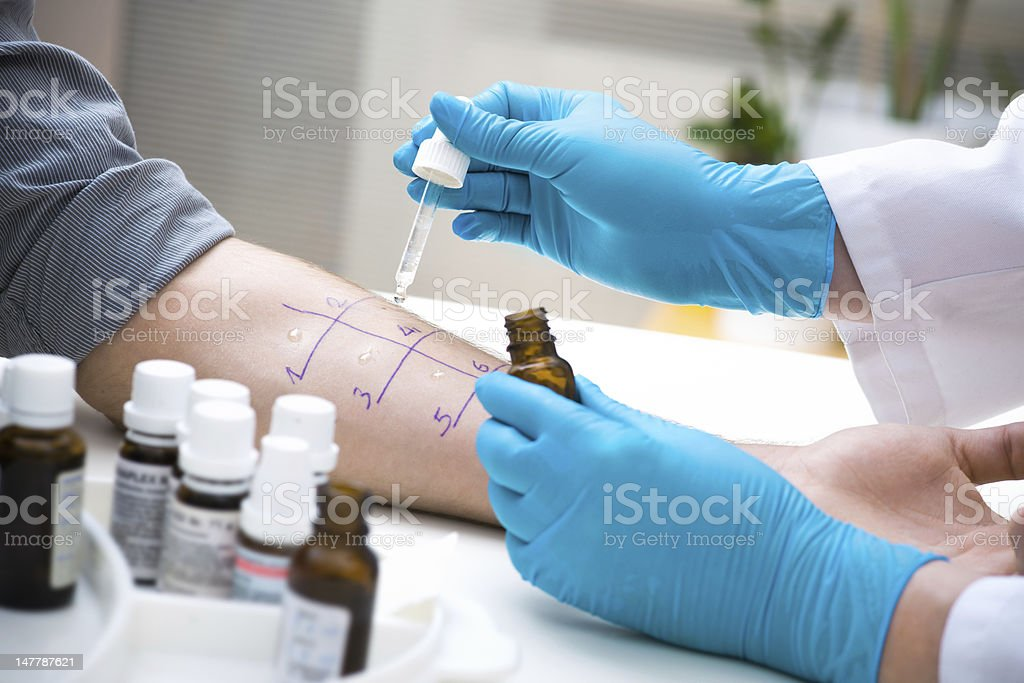 Skin prick allergy test stock photo