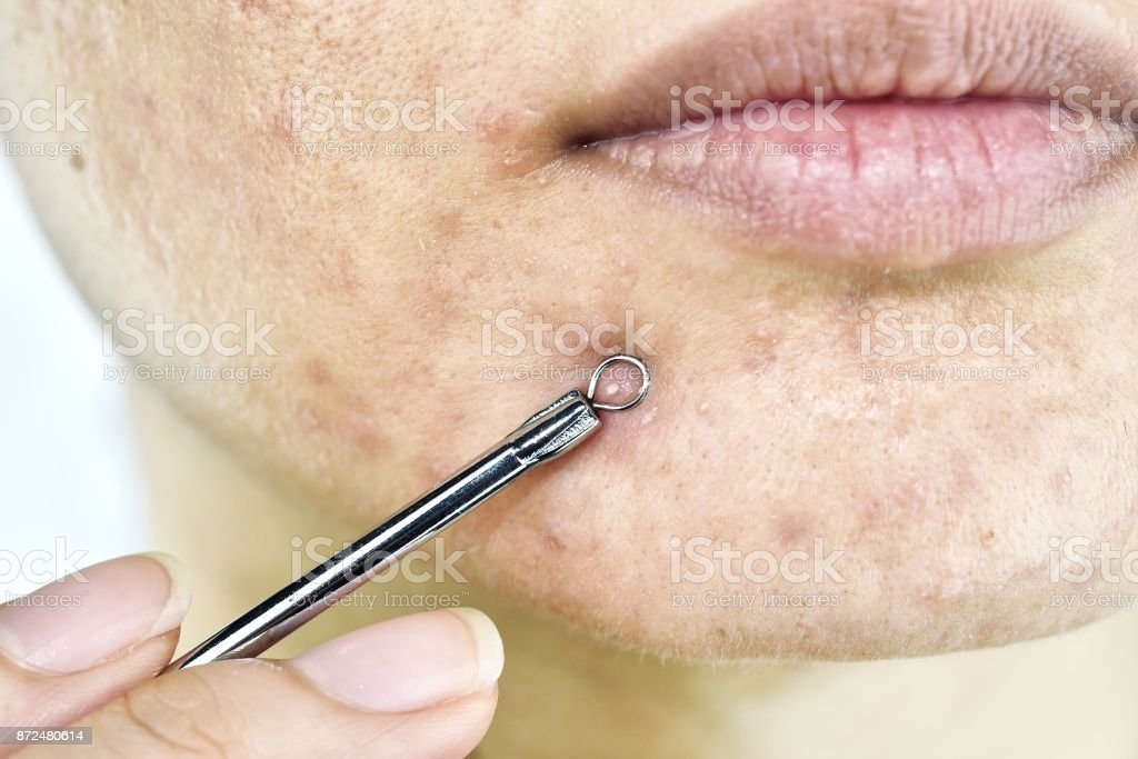 Skin problem with acne diseases, Close up woman face squeezing whitehead pimples on chin with acne removal tool, Scar and oily greasy face, Beauty concept. stock photo
