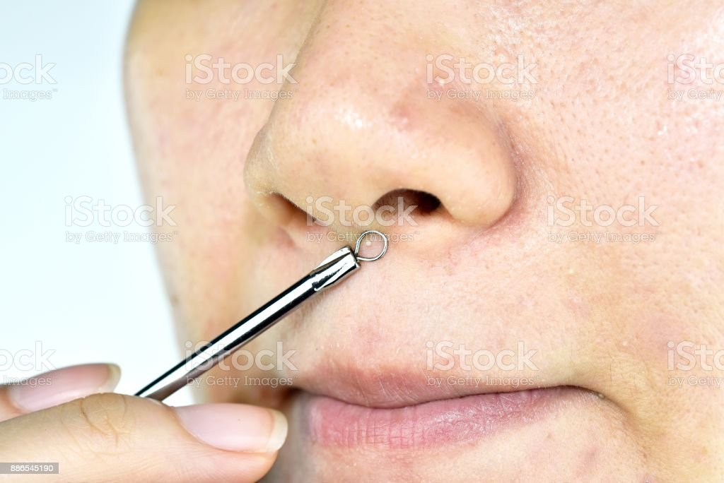 Skin problem with acne diseases, Close up woman face squeezing whitehead pimples on nose with acne removal tool, Scar and oily greasy face, Beauty concept. stock photo