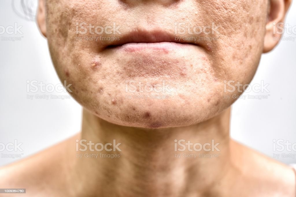 Skin problem with acne diseases, Close up woman face with whitehead pimples on chin, Menstruation breakout, Scar and oily greasy face, Beauty concept. stock photo
