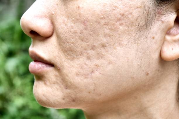 skin problem with acne diseases, close up woman face with whitehead pimples, menstruation breakout, scar and oily greasy face, beauty concept. - acne stock photos and pictures