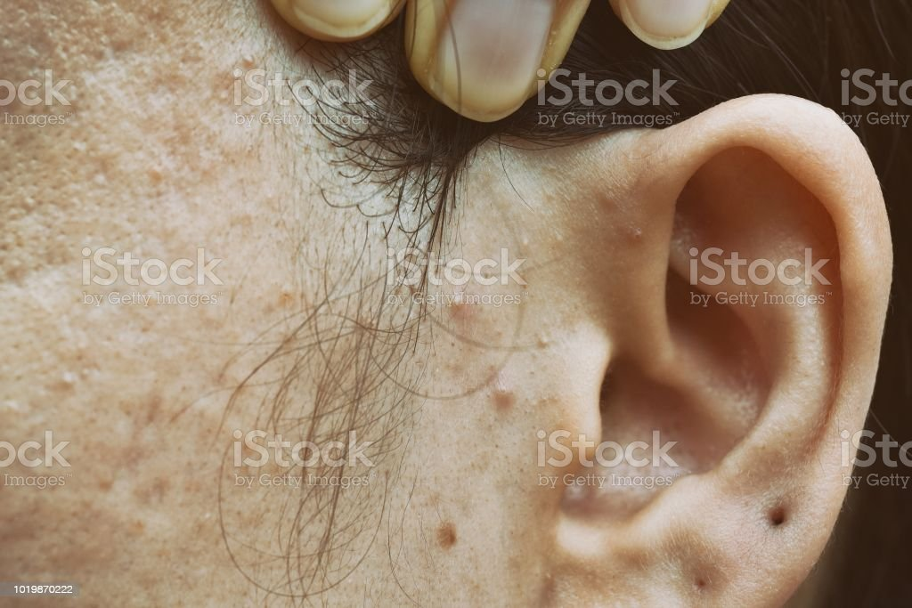 Skin problem with acne diseases, Close up woman face with whitehead pimples, Menstruation breakout, Scar and oily greasy face, Beauty concept. stock photo