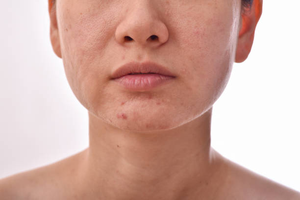 Skin problem with acne diseases, Close up woman face with whitehead pimples, Scar and oily greasy face, Beauty concept. Skin problem with acne diseases, Close up woman face with whitehead pimples, Scar and oily greasy face, Beauty concept. dark spots face stock pictures, royalty-free photos & images