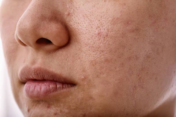 Hautproblem mit Akne-Erkrankungen, Close-up Frau Gesicht mit Whitehead Pickel auf mund, Narbe und fettiges fettiges Gesicht, Beauty-Konzept. – Foto