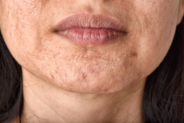 Skin problem with acne diseases, Close up woman face with whitehead pimples on chin, Menstruation breakout, Scar and oily greasy face, Beauty concept. Skin problem with acne diseases, Close up woman face with whitehead pimples on chin, Menstruation breakout, Scar and oily greasy face, Beauty concept. dark spots face stock pictures, royalty-free photos & images