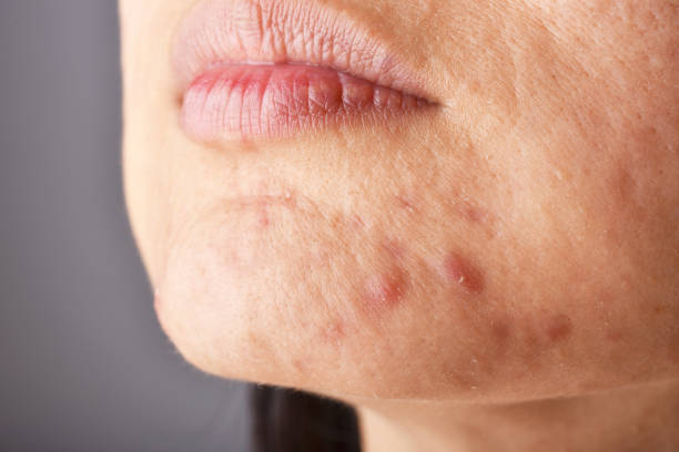 Skin problem with acne diseases, Close up woman face with whitehead pimples on chin, Menstruation breakout, Scar and oily greasy face. Skin problem with acne diseases, Close up woman face with whitehead pimples on chin, Menstruation breakout, Scar and oily greasy face. dark spots face stock pictures, royalty-free photos & images