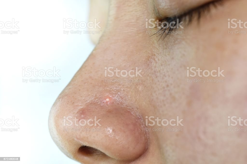 Skin Problem With Acne Diseases Close Up Woman Face With Whitehead Pimples On Nose