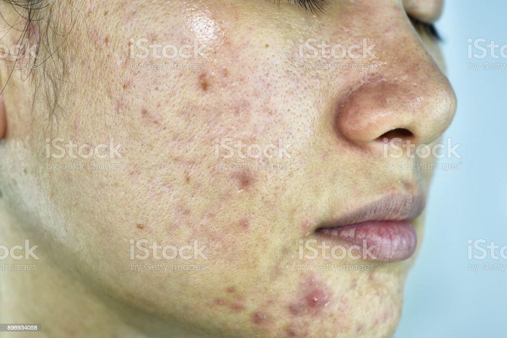 Hautproblem mit Akne Krankheiten, Nahaufnahme Gesicht Frau mit Whitehead Pickel, Menstruation Breakout, Narbe und ölige fettige Gesicht, Beauty-Konzept. – Foto