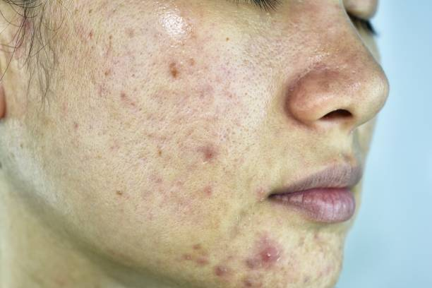 skin problem with acne diseases, close up woman face with whitehead pimples, menstruation breakout, scar and oily greasy face, beauty concept. - cyst stock pictures, royalty-free photos & images