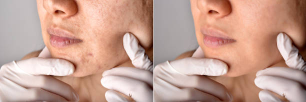 Skin problems and acne scar, Before and after acne facial care treatment, Beauty concept, Doctor hand exam patient face. Skin problems and acne scar, Before and after acne facial care treatment, Beauty concept, Doctor hand exam patient face. dark spots face stock pictures, royalty-free photos & images