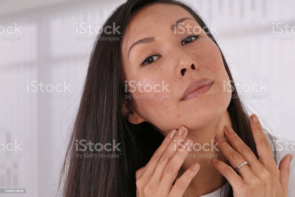 Skin Problems : Asian woman covering pimple scars and acne with powder foundation stock photo