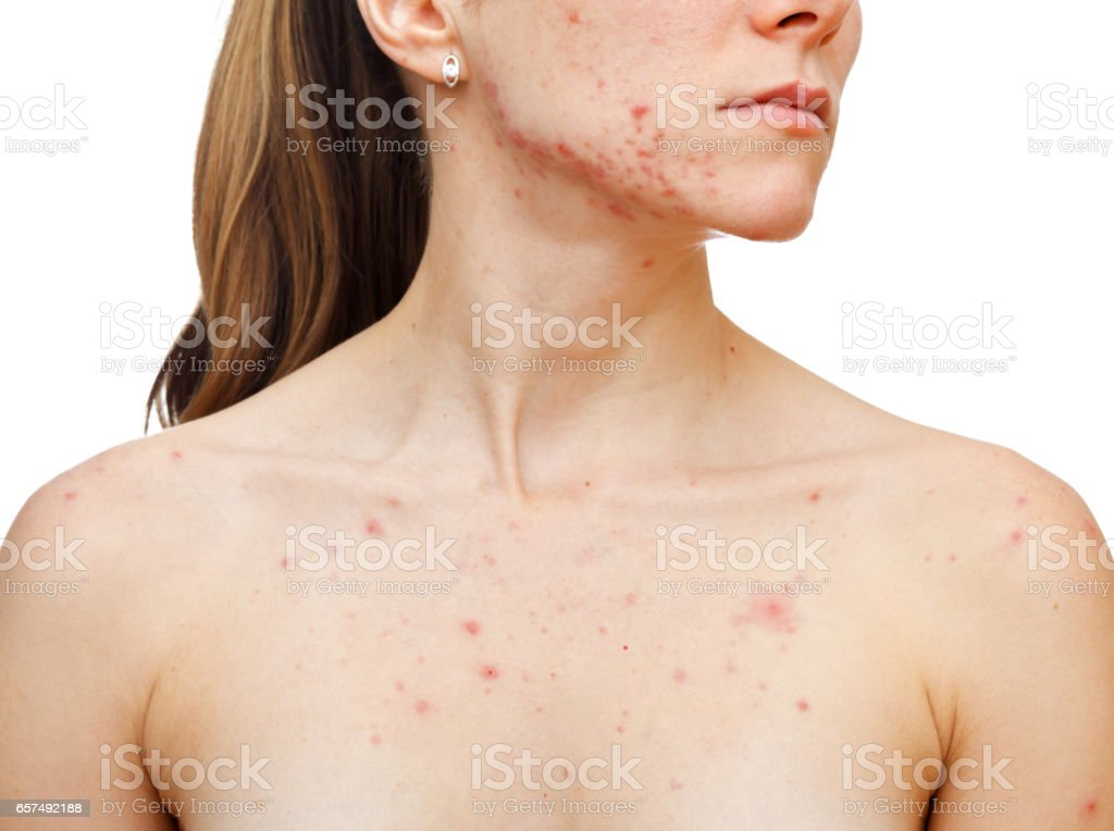 Skin problems stock photo