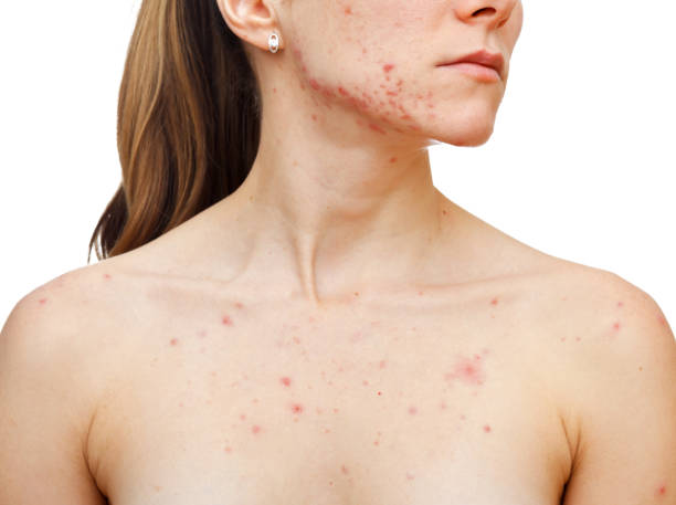 Skin problems Portrait of woman showing her pimples on isolated white background measles stock pictures, royalty-free photos & images