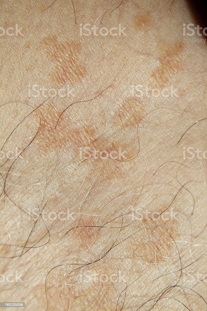 Skin problems - Pityriasis Versicolor royalty-free stock photo