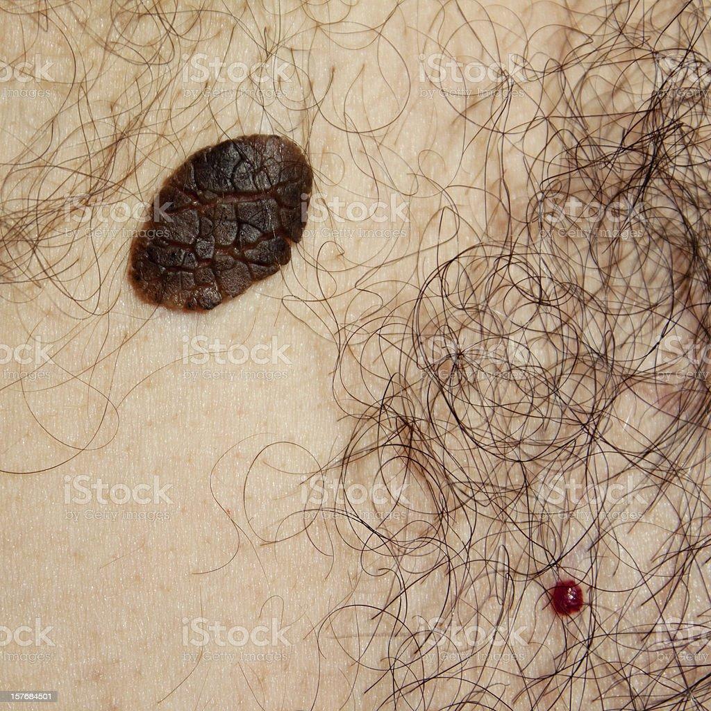 Skin problems - Seborrhoeic Keratosis and Cherry Angioma stock photo